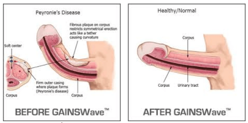 What are the effects of atherosclerosis