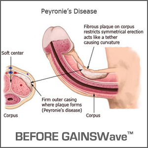 what is peyronies disease